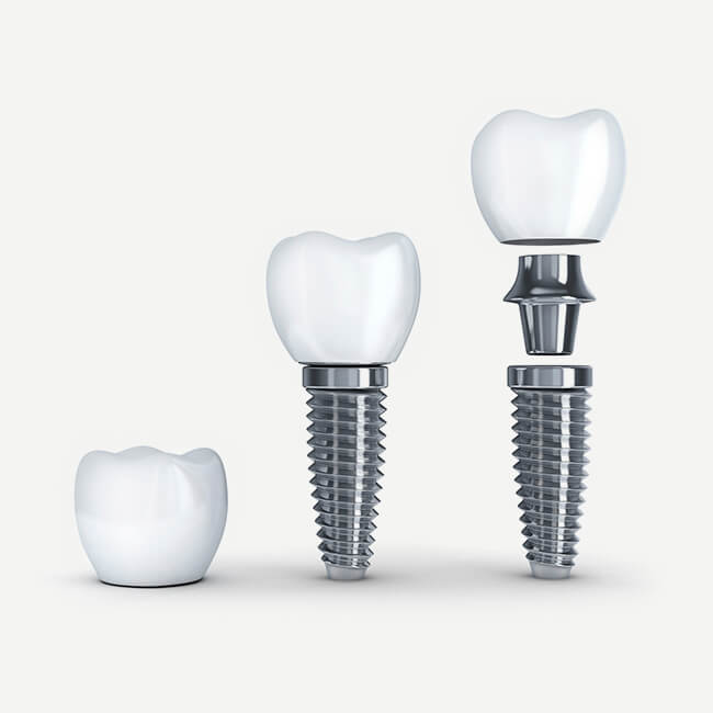 An example of an improved technology dental implant.