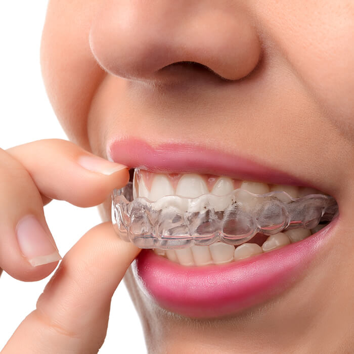An example of clear Invisalign when worn.