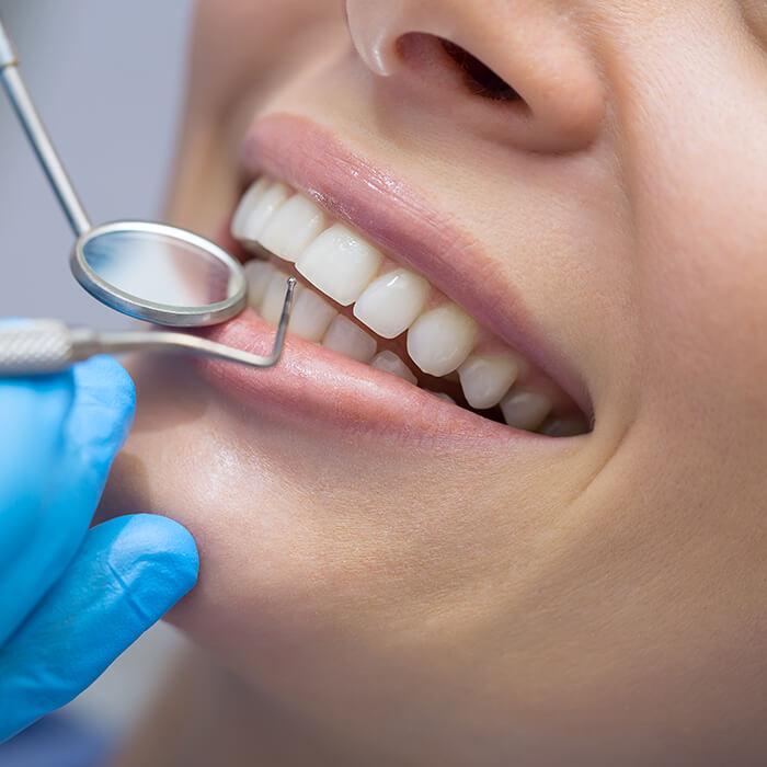 Careful teeth examination before placing the bridge.